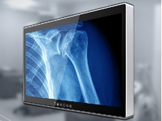 Winmate's M320TF-SDI 4K UHD medical display