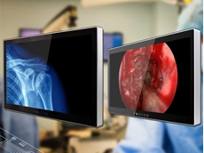 Winmate's Healthcare 4K-UHD medical displays with 12G-SDI support