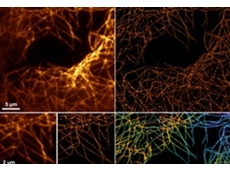 New MetaMorph real-time super-resolution imaging from Scitech