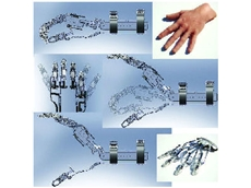 Didrick designed X-Fingers using SolidWorks over two weeks, after only one week of self-paced tutorials